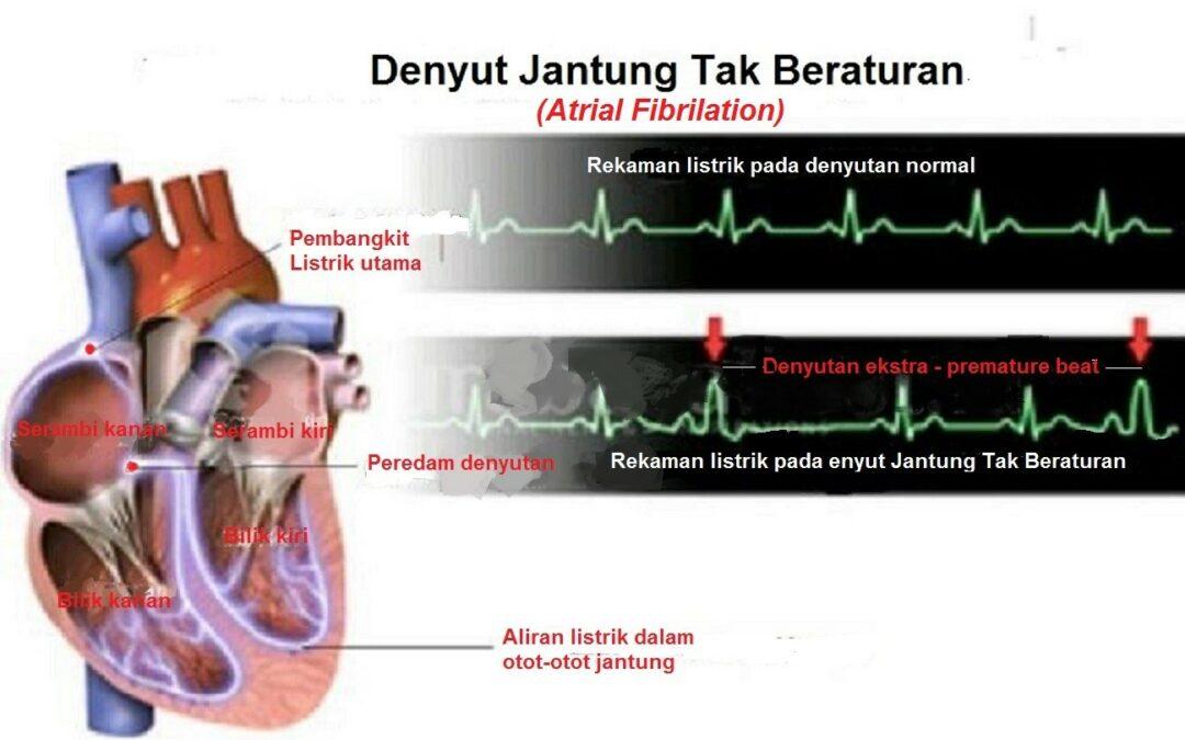 Denyut Jantung Tak Beraturan (Atrial Fibrilation)