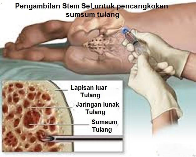 Kanker Darah Putih (Lekemi)